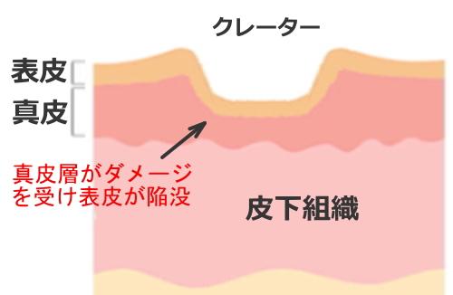 Melline acne crater 1